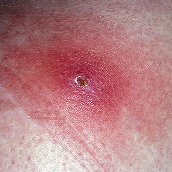 An illustration callout of a furuncle or carbuncle on a person's forehead.