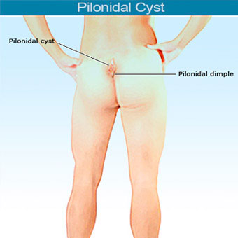 An illustration of a pilonidal cyst that occurs in or above the crease of the buttocks.