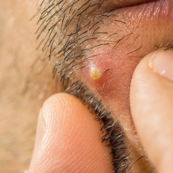 A close-up of a boil on a man's face.