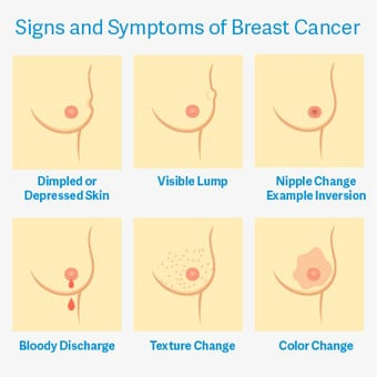 A lump is the most common sign of breast cancer.