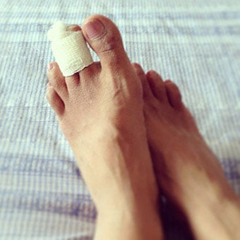 A person with the buddy tape treatment for his broken toe.