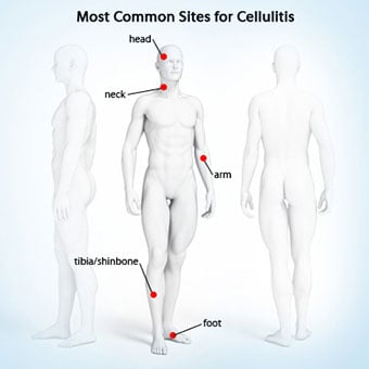 This illustration shows the most common sites for cellulitis.