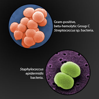 Microscopic images of strep (Streptococcus) and staph (Staphylococcus) bacteria.