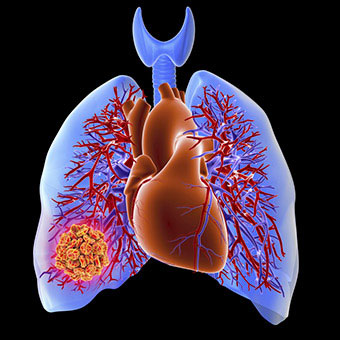 Some lung conditions and cancers cause chest pain.