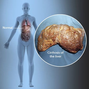 3D illustration showing the location of the human liver and a callout of cirrhosis of the liver.