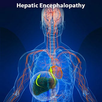 An illustration shows hepatic encephalopathy.