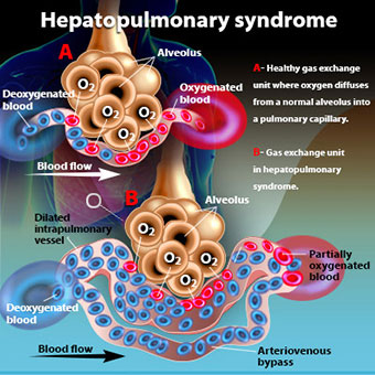 An illustration shows hepatopulmonary syndrome.