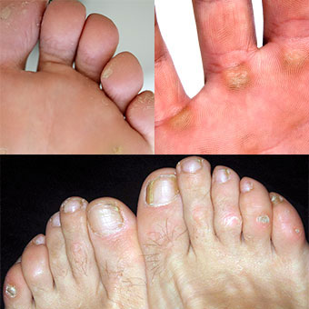Examples of corns and calluses on the feet and hand.