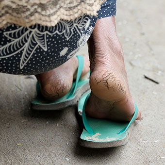 A woman has dry, hardened skin on her heels.
