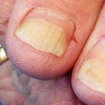 Examples of conditions that are often mistaken for fungal nails include yellow nails (onycholysis), hematoma, green nails (caused by Pseudomonas bacteria), pitted nails (usually associated with psoriasis), nail infection (paronychia), and previous injury (trauma).