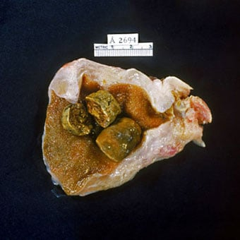 Gallbladder opened to show numerous pigmented gallstones.