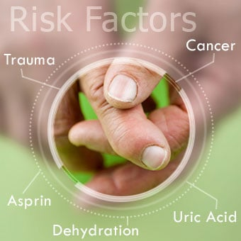 Gout attacks have multiple risk factors that cause uric acid levels to rise.
