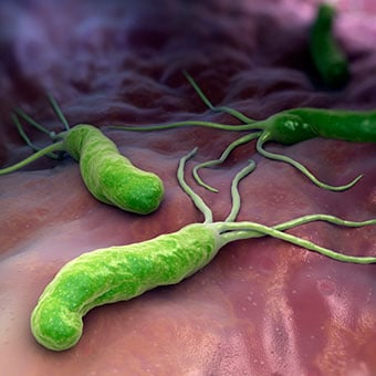 Illustration of <i>Helicobacter Pylori</i> (<i>H. pylori</i>) infectious bacteria.