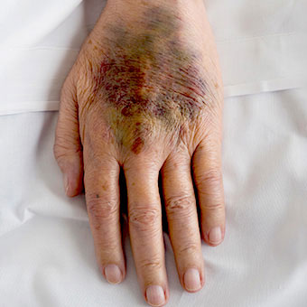 A close up of a large hematoma bruise on a patient's hand.