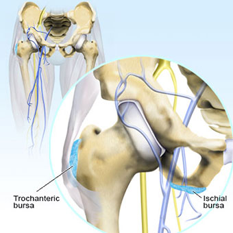 An illustration of hip bursitis shows the trochanteric bursa and the ischial bursa.
