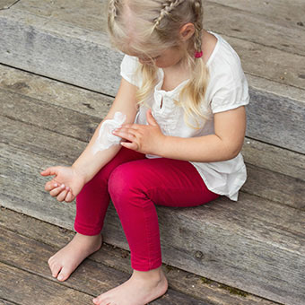 A young girl puts lotion on her arm to treat her hives.