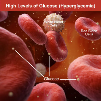 White hexagons in the blood represent glucose molecules which increase as a result of hyperglycemia.