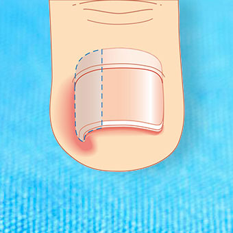 Ingrown toenail surgery involves temporary resection and removal of the nail border.
