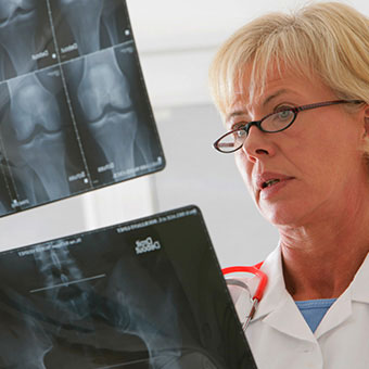 Before knee replacement surgery, a doctor will also examine other joints.