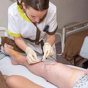 After a total knee replacement, physical therapy is often prescribed.