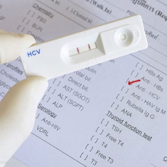 Hepatitis C virus (HCV) test cassette shows positive reading (double red band).