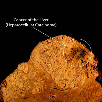 Photo shows a longitudinal sliced view of a liver with cancer (Hepatocellular carcinoma).