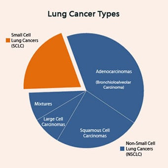 Pie chart of lung cancers types.