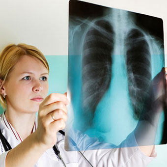 A doctor examines a lung X-ray.