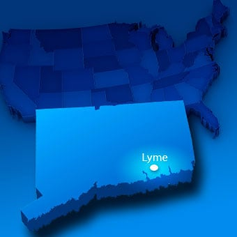 Lyme disease gets its name from the small coastal town of Lyme, Conn., due to a large outbreak there of children with the disease in 1975.