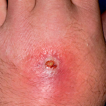 Abscess and cellulitis from a methicillin-resistant Staphylococcus aureus (MRSA) hand infection.