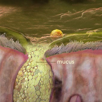 Green mucus, yellow mucus, and excessive phlegm can indicate infection.