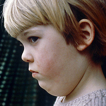 A child suffers from mumps.