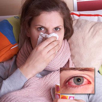 A woman suffers from a cold and an example of viral pinkeye (conjunctivitis).