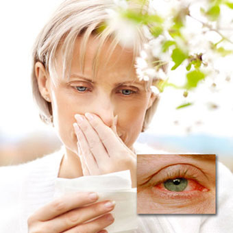 A woman suffers from seasonal allergies and an example of allergic pinkeye (conjunctivitis).
