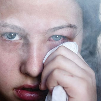 A girl with pinkeye caused by smoke.