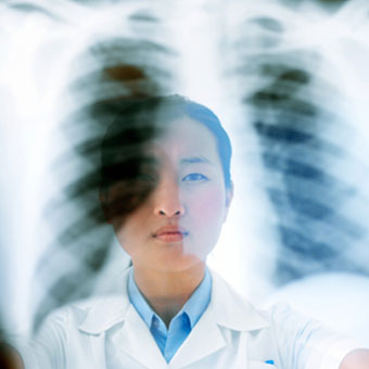 A doctor examining and chest X-ray.