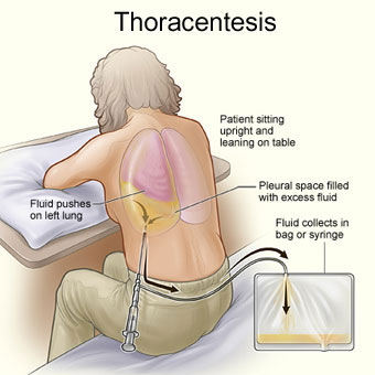 Illustration showing treatment of pleurisy by throacentesis where excess fluid is drained into a bag or syringe.