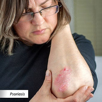 A woman examines a patch of psoriasis on her elbow.