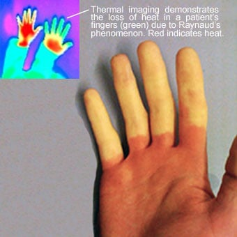 This thermal image demonstrates the loss of heat in a patient's fingers (green) due to Raynaud's phenomenon. Red indicates heat.