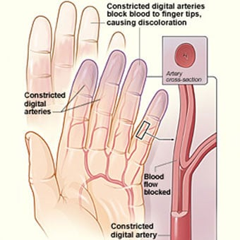 The illustration shows white discoloration of the fingertips caused by blocked blood flow as well as narrowed digital arteries, causing blocked blood flow and purple discoloration of the fingertips. The inset image shows a cross-section of a narrowed artery blocking the flow of blood.