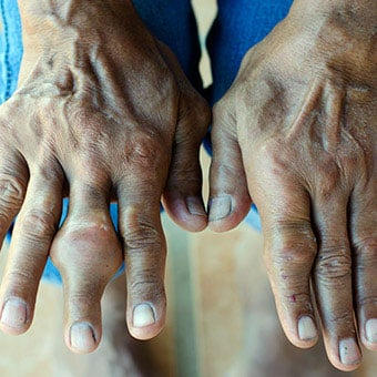 A person suffering from RA has multiple swollen joints on both hands and wrists.