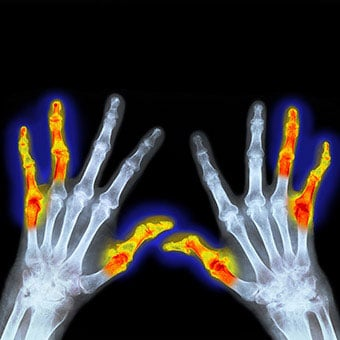 This X-ray of hands affected by rheumatoid arthritis (RA) shows colorized symmetry of affected joints on both hands.