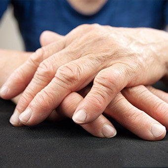 A woman's hands show swollen finger joints due to rheumatoid arthritis (RA).