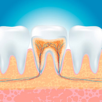 An illustration of teeth shows the inflamed area of tooth decay targeted during a root canal.