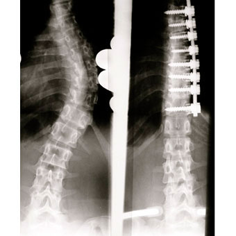 Surgical result after ventral fusion of scoliosis.