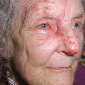 Shingles virus can also affect the eyes.