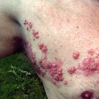 Shingles rash is a red, blistering rash that usually affects one side of the body.