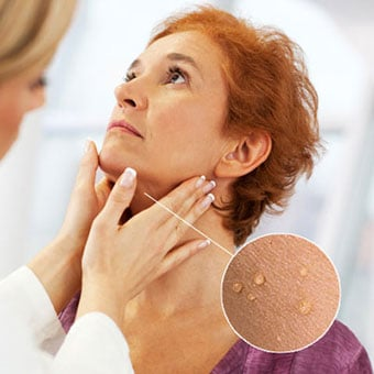 A doctor examines skin tags on a woman's neck.