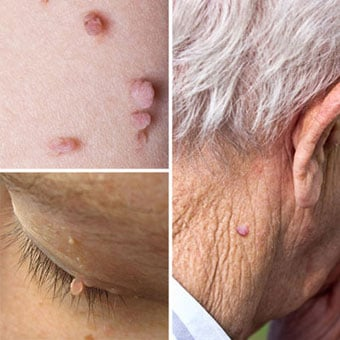 Collage of skin tags on the body, eyelid, and back of the neck.