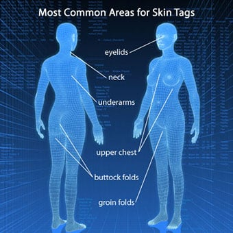 A 3-D illustration shows where skin tags can occur on the body.